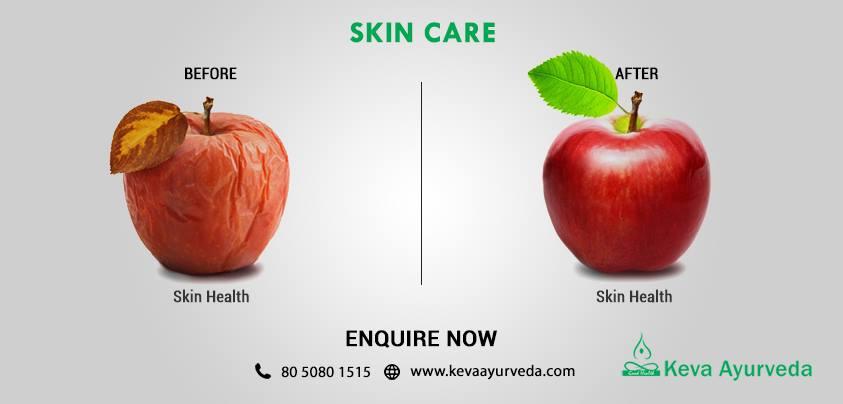 keva-ayurveda-health-care-bangalore-9
